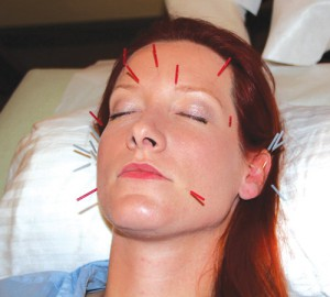 Acupuncture can deliver face lift benefits naturally