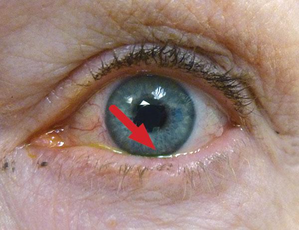 Dermatitis perioralis - Huidarts.com
