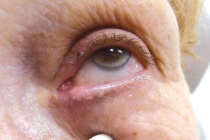 "Sebaceous cell carcinoma.  This subtle lesion was present for two months prior to presentation.  It gave the appearance of ""thickening"" of the inner side of the left lower eyelid margin."