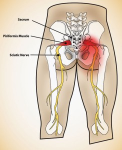 What Causes Sciatica