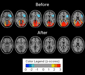 My before and after brain activity in a quiet state with eyes open (placed on stock head images) Before (top): Colors demonstrate the brain working hard in different states with blue and red representing extremes at both ends of the spectrum. After (bottom): The complete grey picture indicates function that is near the norm not requiring significant effort.