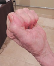 Prior to treatment, arthritis kept Davis from being able to make a fist