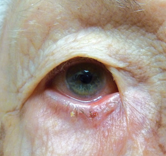 Protection and Signs of Eyelid Cancer Often Overlooked - Desert Health®