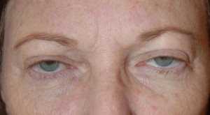BEFORE—This patient has excess skin of the upper lids as well as ptosis (drooping eyelids)