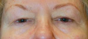 Pre Eyelid Surgery