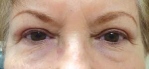 Post Eyelid Surgery