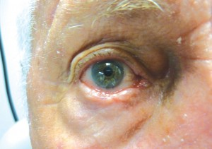 A large nodular basal cell carcinoma of the right lower eyelid margin (region of eyelash growth).  Note the irregularity of the margin surface, diffuse loss of eyelashes and roughened contours.