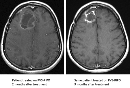 MRI of a patient's brain, axial view, at 2 months and 9 months after PVS-RIPO treatment (Source: Duke Preston Robert Tisch Brain Tumor Center website)