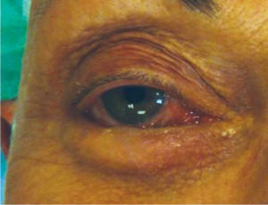 With spastic entropion, laxity of the eyelid and ocular irritation may create an inturning of the eyelid causing lashes to rub against the eye